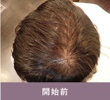 ヘキサG開始前の髪の様子