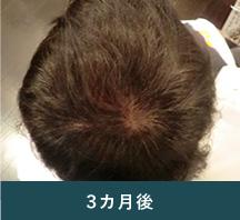 3カ月経過後の髪の様子
